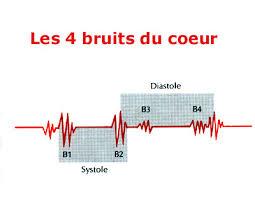 Pathologie cardio-vasculaire